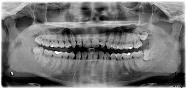 Wisdom Tooth Extraction Using Medisave